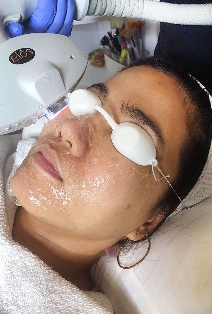 Get Brighter, More Radiant and Younger Looking Skin Through Photofacial or IPL